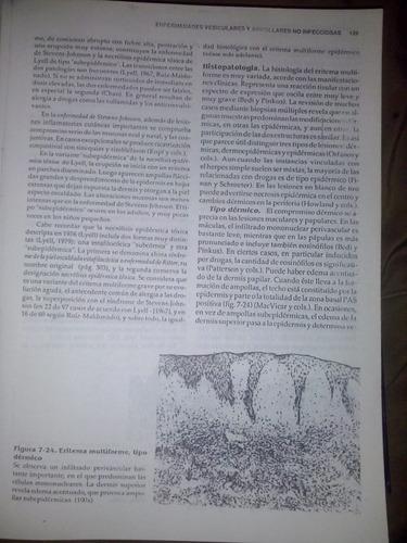 dermatología. histopatologia de la piel de walter f. lever