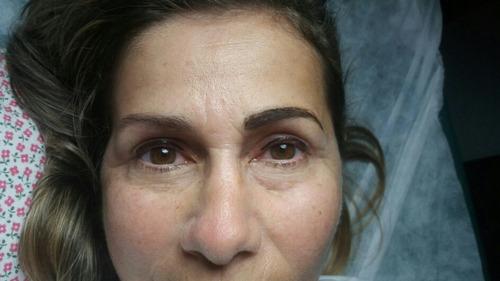 dermopigmentacion
