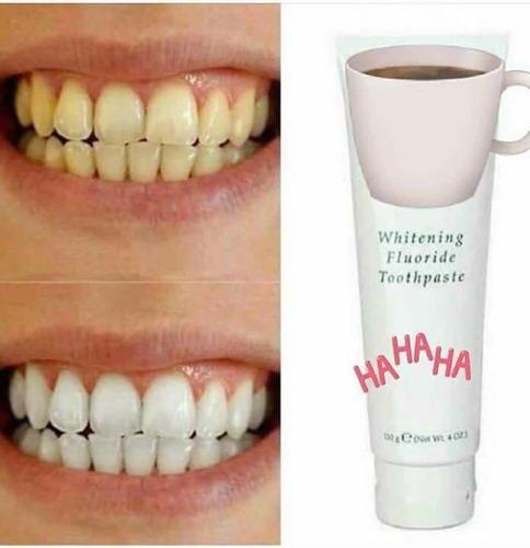 desmancha tus dientes
