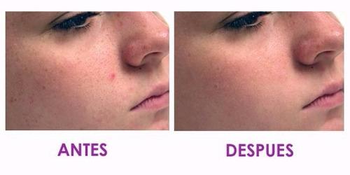 diamond massager secret  facial microdermoabrasion masaje