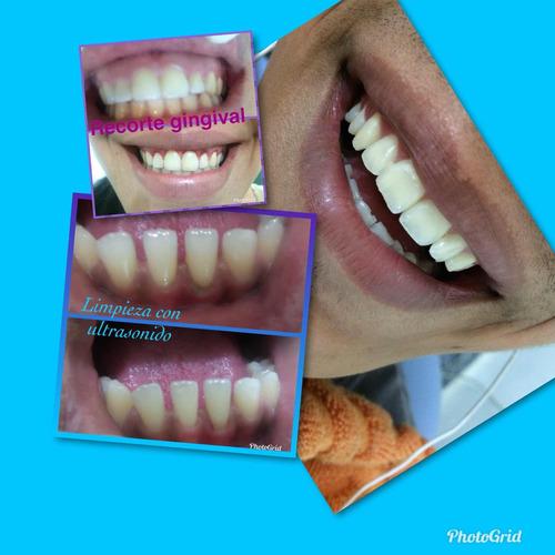diseño de sonrisa. carillas y odontologia