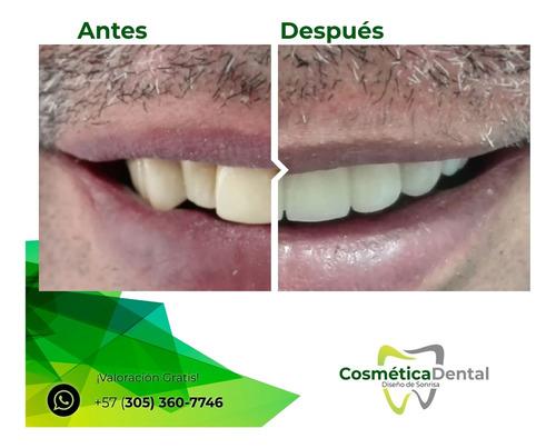 diseño de sonrisa resultado natural valoración gratis bogotá