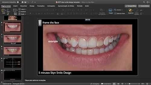 dsd template powerpoint e keynote digital smile design