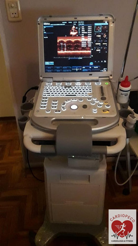 ecocardiograma doppler color - vasos de cuello y miembros