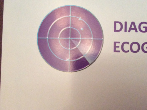 ecodoppler color vascular / laser terapia en varices
