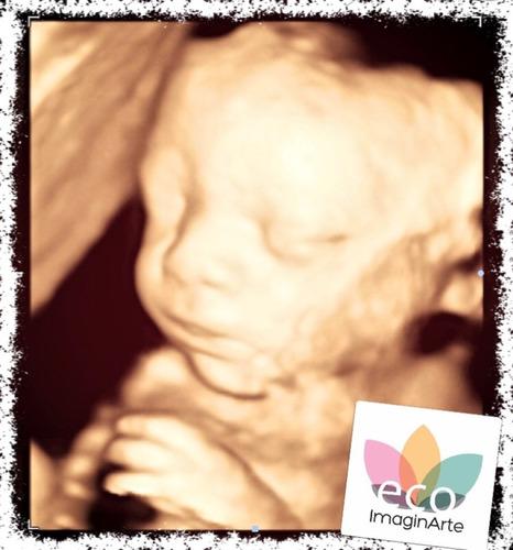 ecografia 5d y 4d / scan fetal / eco tv / obstétrica / tn