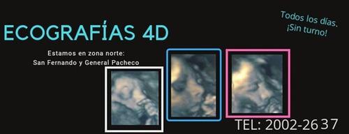 ecografias 4d adultos /niños clinica de la mujer te 20022637