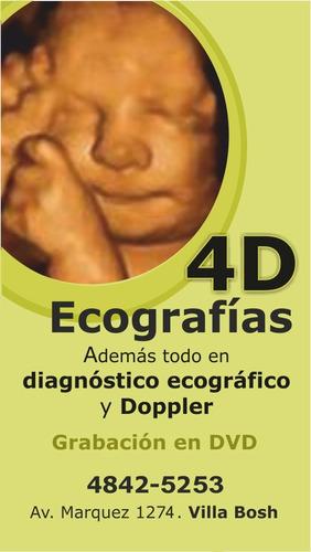 ecografías 4d /scan fetal / translucencia nucal /doppler/