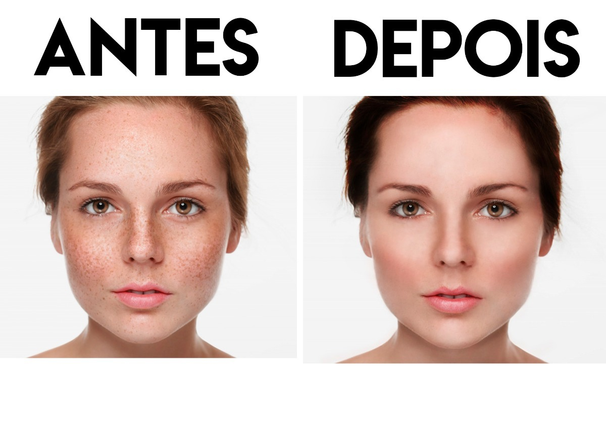 Edicao Photoshop Tratamento De Pele Remocao De Acne Barato R 24