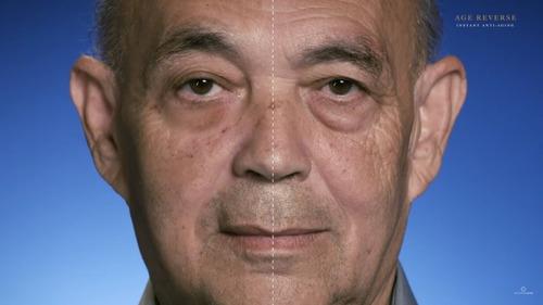 efeito cinderela anti idade sinais age reverse tratamento