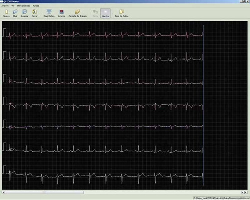 electrocardiografo veterinario temis tm300v