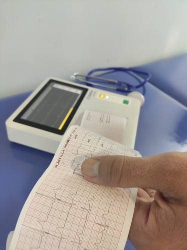 electrocardiograma a domicilio  informado por cardiologo