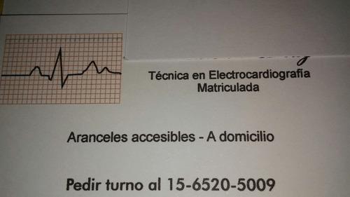 electrocardiogramas a domicilio