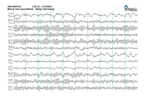 electroencefalogramas eeg psg videoeeg pevoc emg domicilios