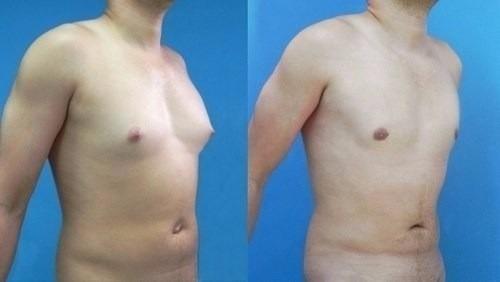 elimina ginecomastia grasa en pecho