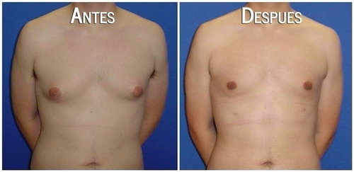 elimina ginecomastia grasa en pecho gynemax abdomen marcado