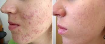 elimina manchas y acne
