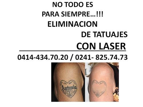 eliminacion borrado de tatuajes con laser