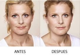 eliminación de arrugas ácido hialurónico inyectable
