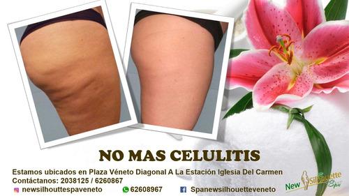 eliminación de celulitis
