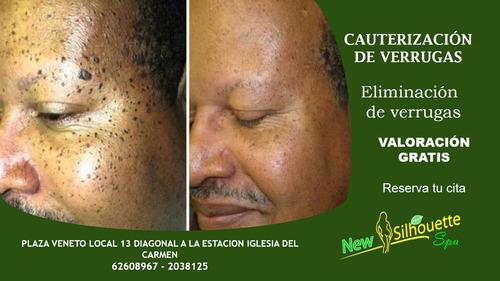 eliminación de verrugas