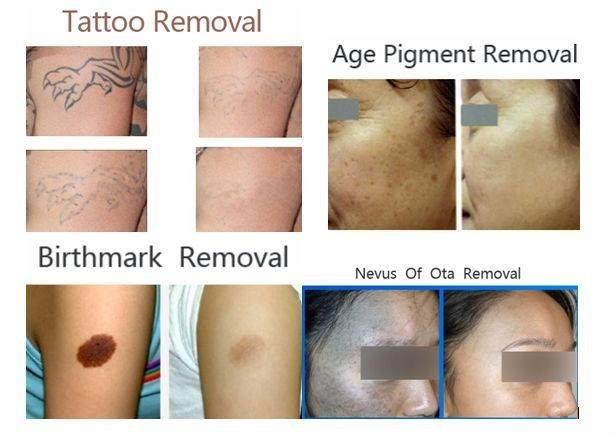 Eliminación Laser De Tatuajes Manchas Solares Lunares Etc 999