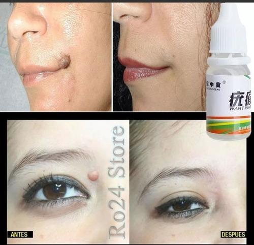 eliminar verrugas vph papiloma lunares genital rostro cuerpo