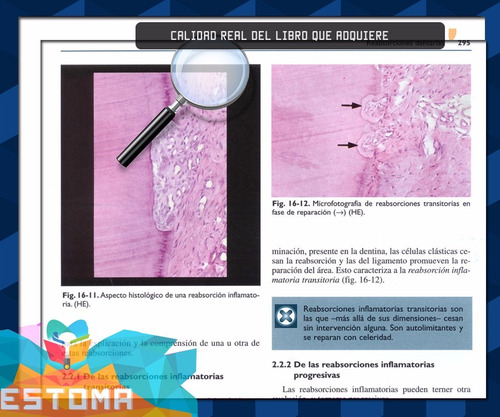 endodoncia técnica yfundamentos pdf digital dentista bracket