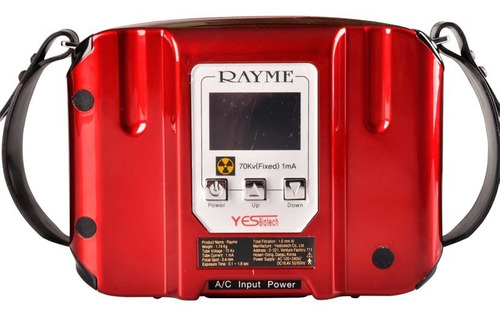 equipo de rayo x portatil dental odonto mx-10