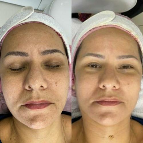 estetica facial, corporal micropigmentação e ext. de cilios