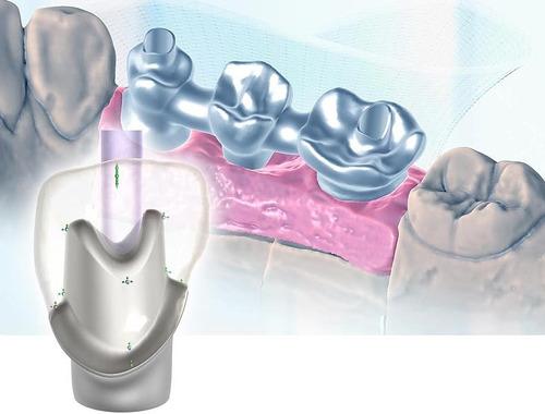 estructuras en zirconio para laboratorio dental