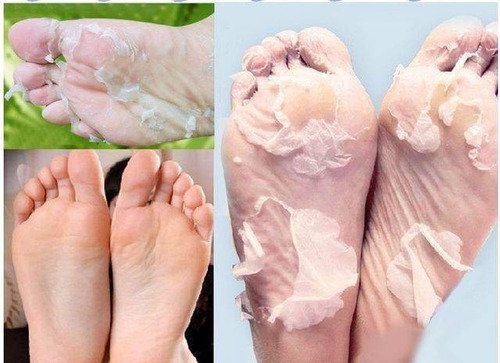 exfoliante para pies mascara peeling quita callos