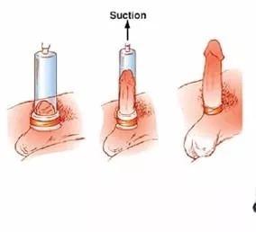 despre extensorul penisului