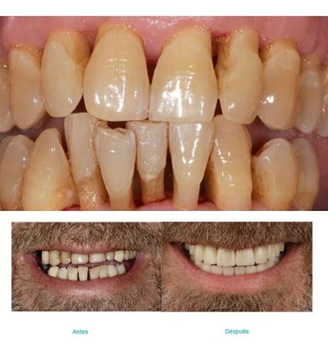 extracciones dentales y protesis