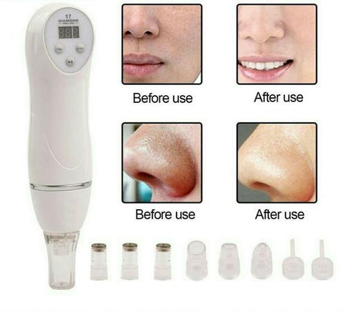 extractor de espinillas y puntos negro portatil elimina acné