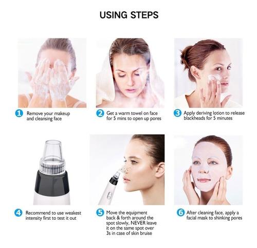 extractor puntos negros espinillas limpieza facial poros