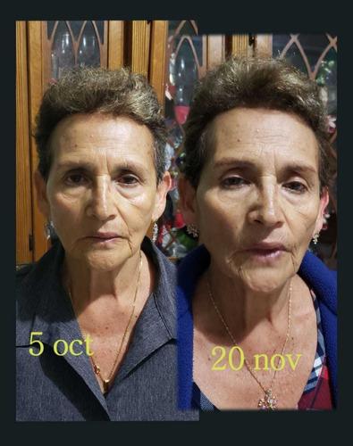faciales cambia renueva tu piel