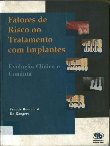 fatores de risco no tratamento com implantes