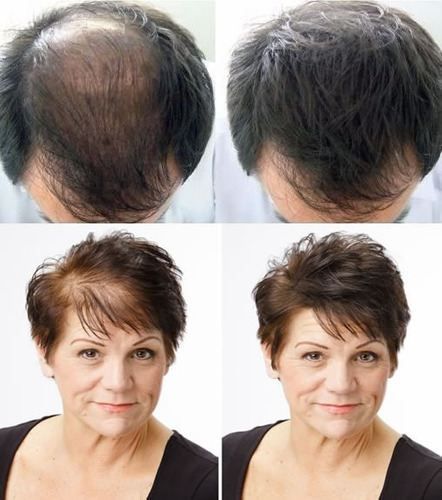 fibra capilares calvicie toppik sevich recarga 100g alopecia
