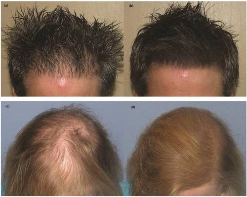 fibras capilares effiicient de queratina caida cabello pelo