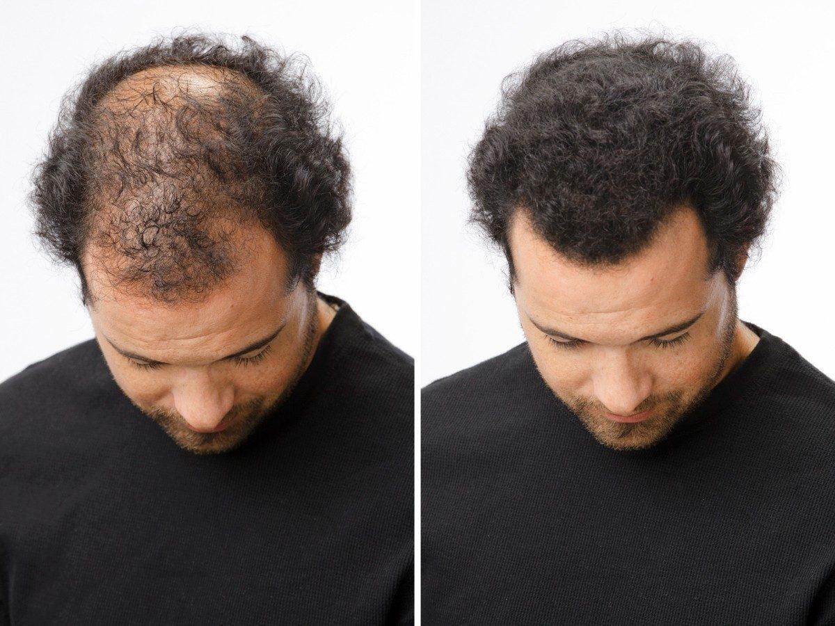 Las máscaras para los cabellos contra la caspa y para