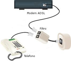 filtro telefonico
