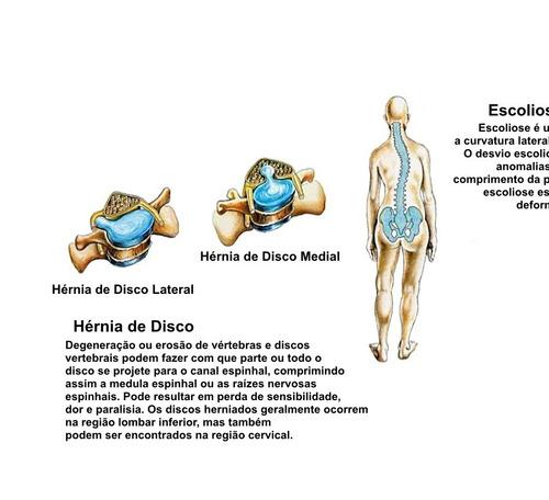 fisioterapia foto poster coluna vertebral 65x100cm medicina