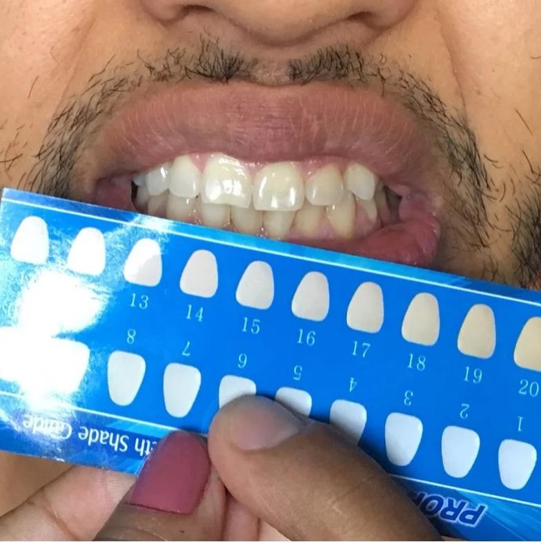 Fita Clareadora Branqueadora Whitestrips Dental 14 Pares R 69 00