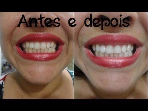 Fita Clareadora Dental Clareamento Dental Whitestrips R 39 00