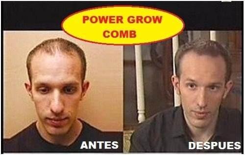 follicle rx evita caída cabello tratamiento alopecia crece