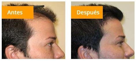 follicle rx regenera cabello perdido fortaleze pelo caida