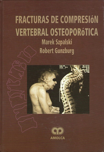 fracturas de compresion vertebral osteoporotica