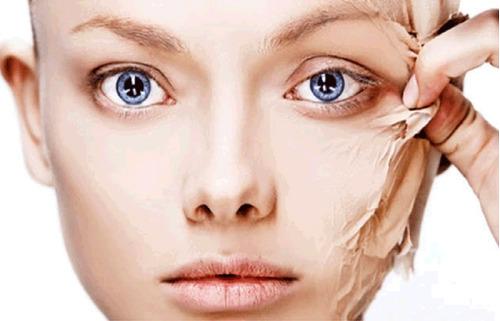 gel acido mandelico 10% peeling manchas rosacea acne idraet