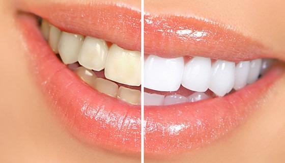 Gel Clareador Whiteness Perfect 22 Clareamento 1 Seringa R 25 50